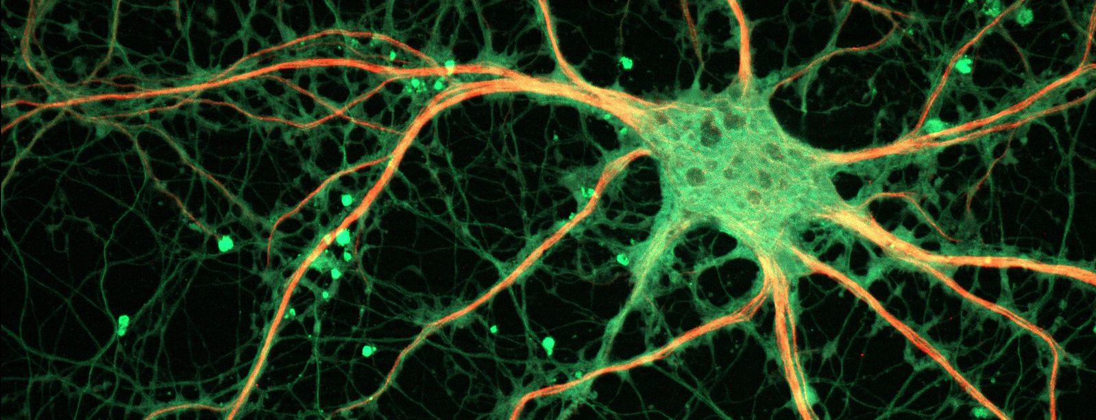 brain neuron network in green and yellow edges and nodes